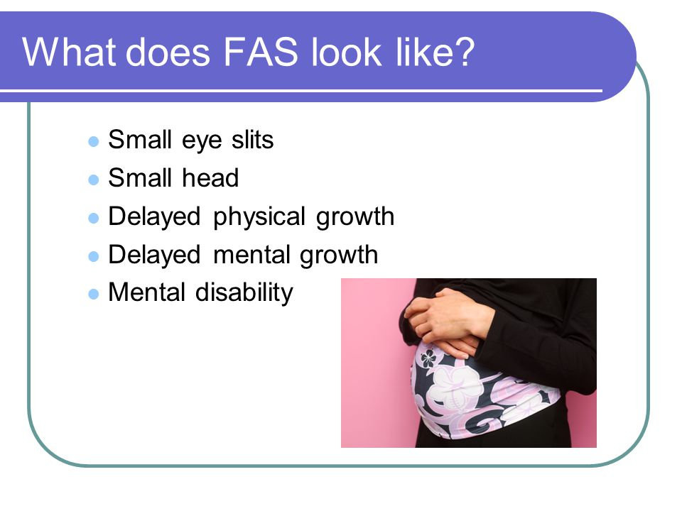 What does FAS look like Small eye slits Small head