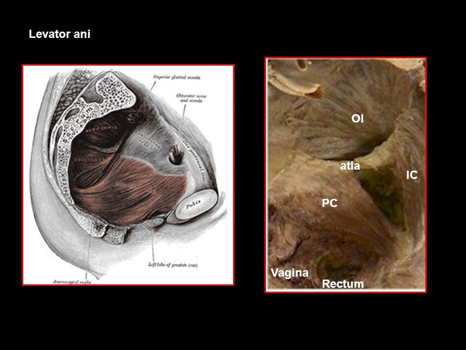 Levator ani OI atla IC PC Vagina Rectum