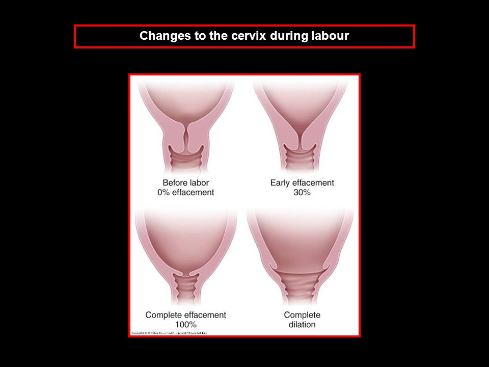 Changes to the cervix during labour