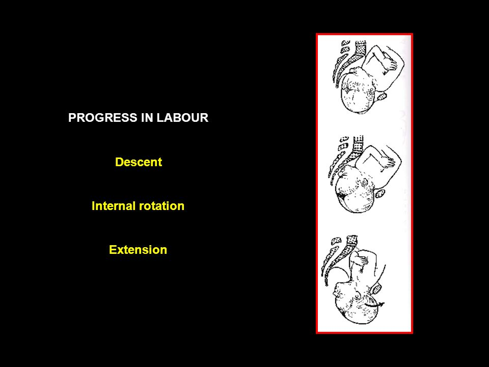 PROGRESS IN LABOUR Descent Internal rotation Extension