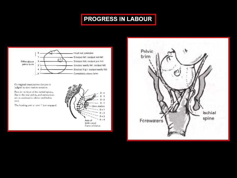 PROGRESS IN LABOUR