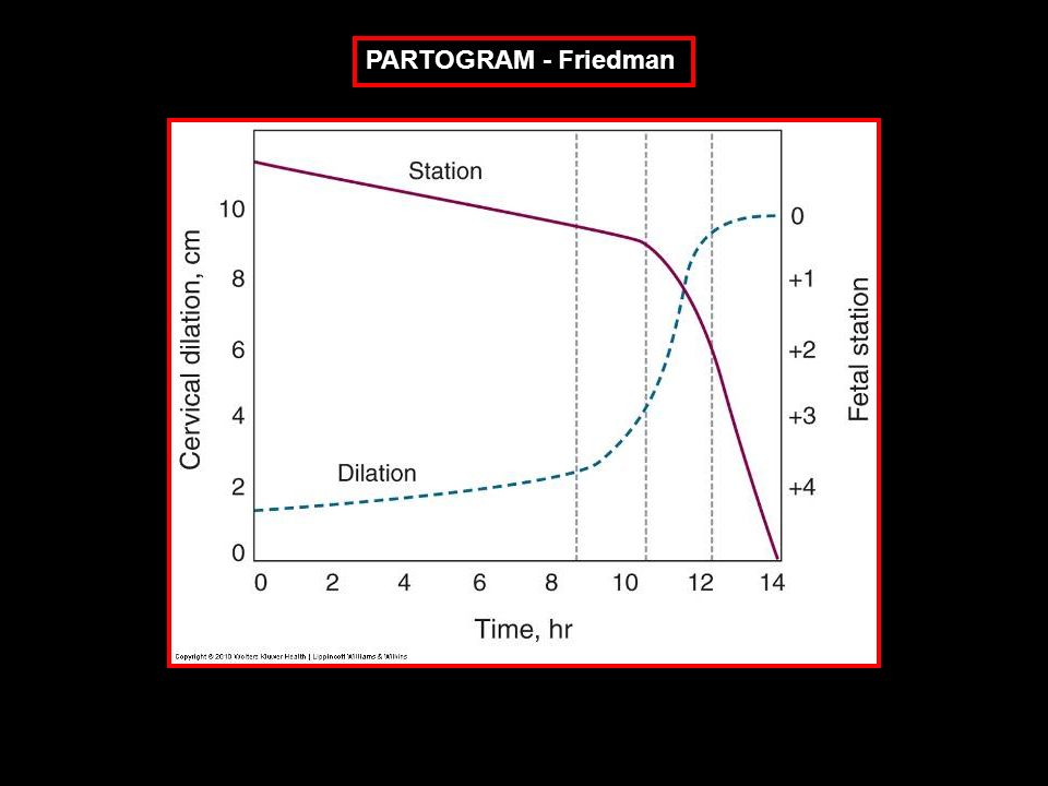 PARTOGRAM - Friedman