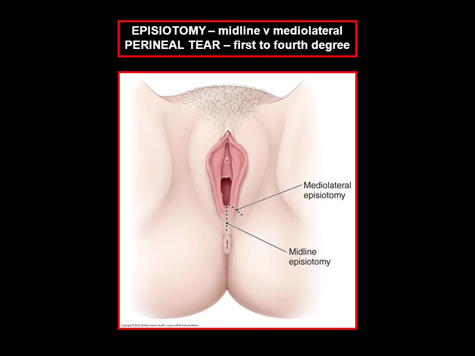 EPISIOTOMY – midline v mediolateral