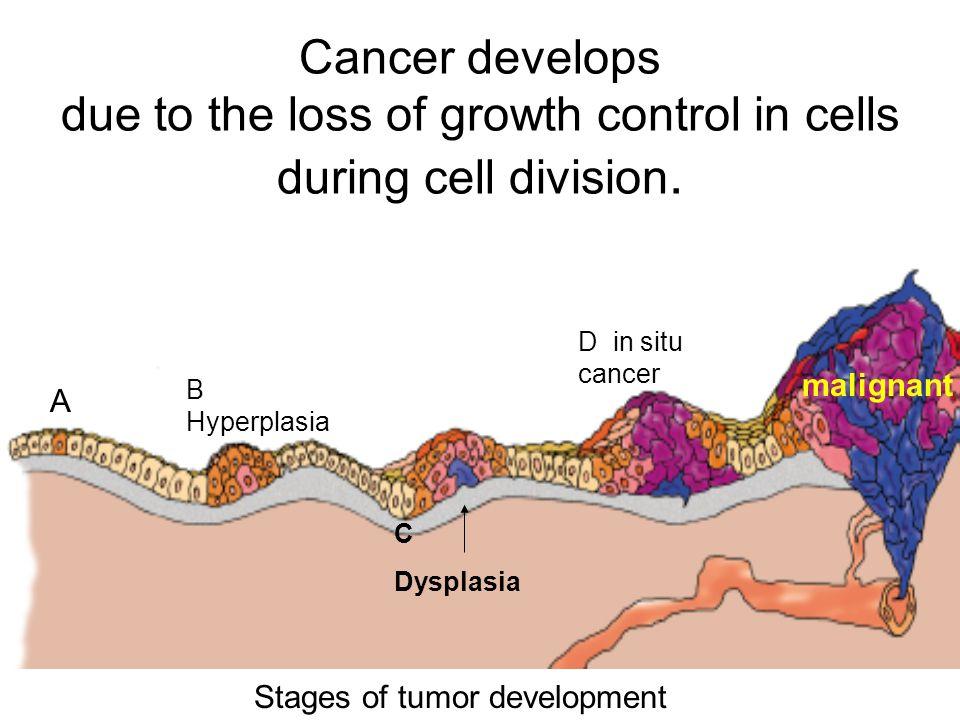 Stages of tumor development