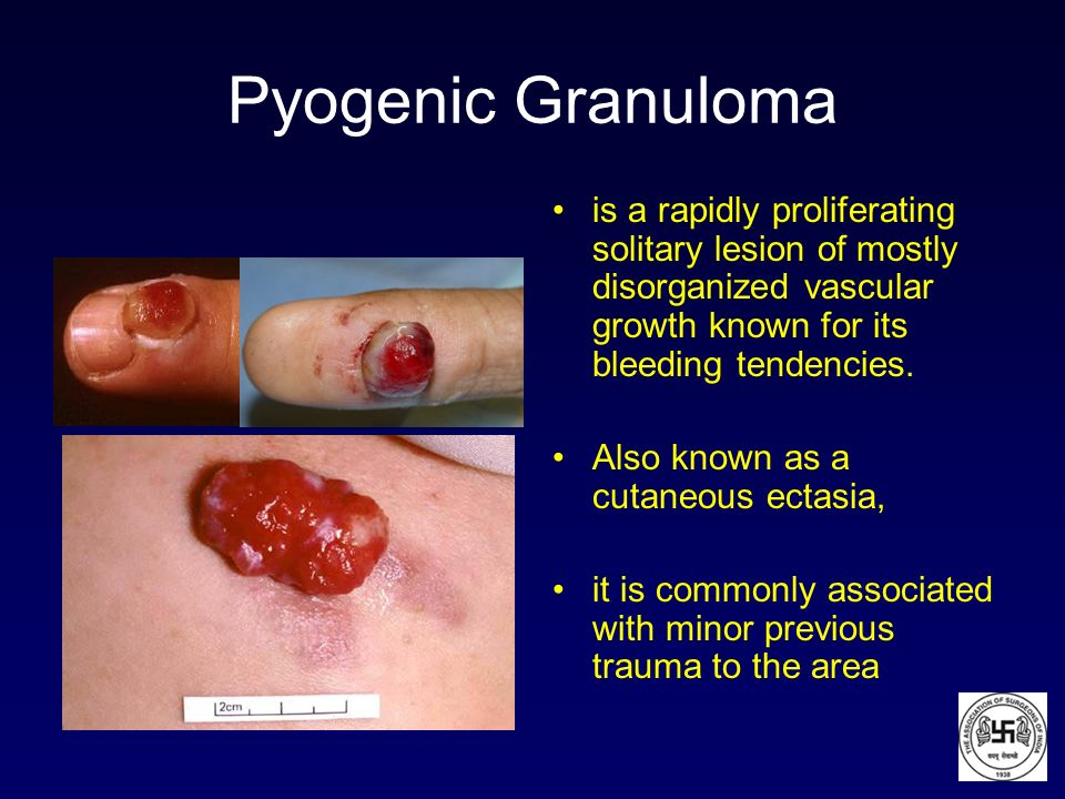Pyogenic Granuloma is a rapidly proliferating solitary lesion of mostly disorganized vascular growth known for its bleeding tendencies.