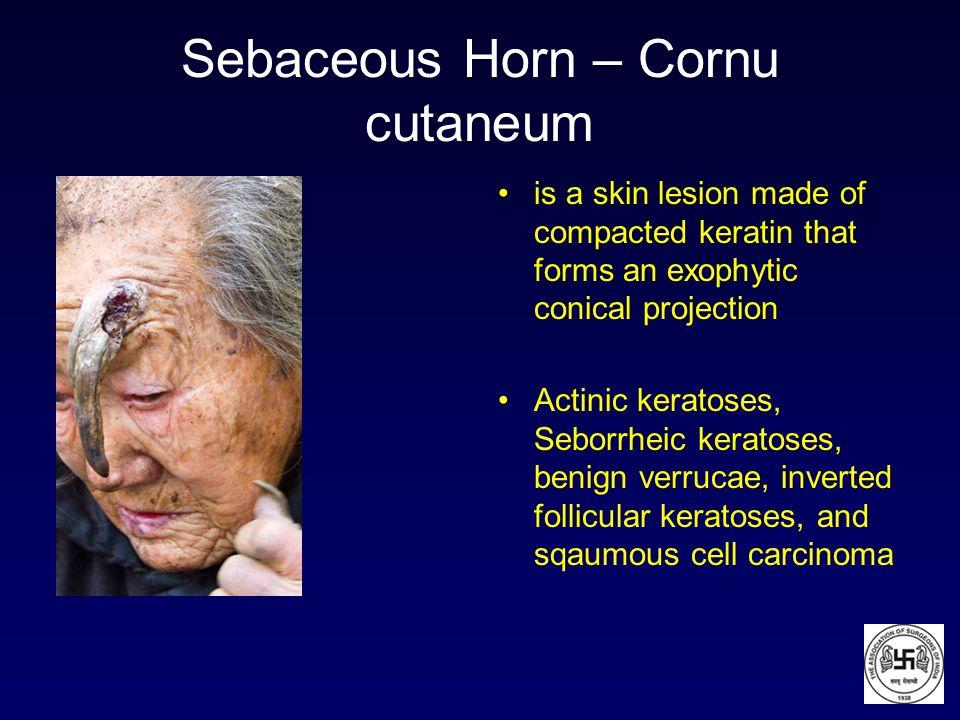 Sebaceous Horn – Cornu cutaneum