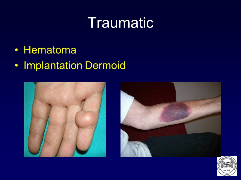 Traumatic Hematoma Implantation Dermoid