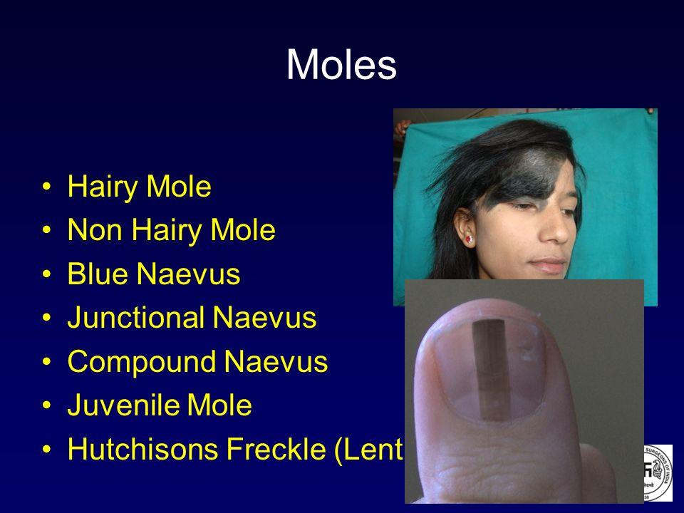 Moles Hairy Mole Non Hairy Mole Blue Naevus Junctional Naevus