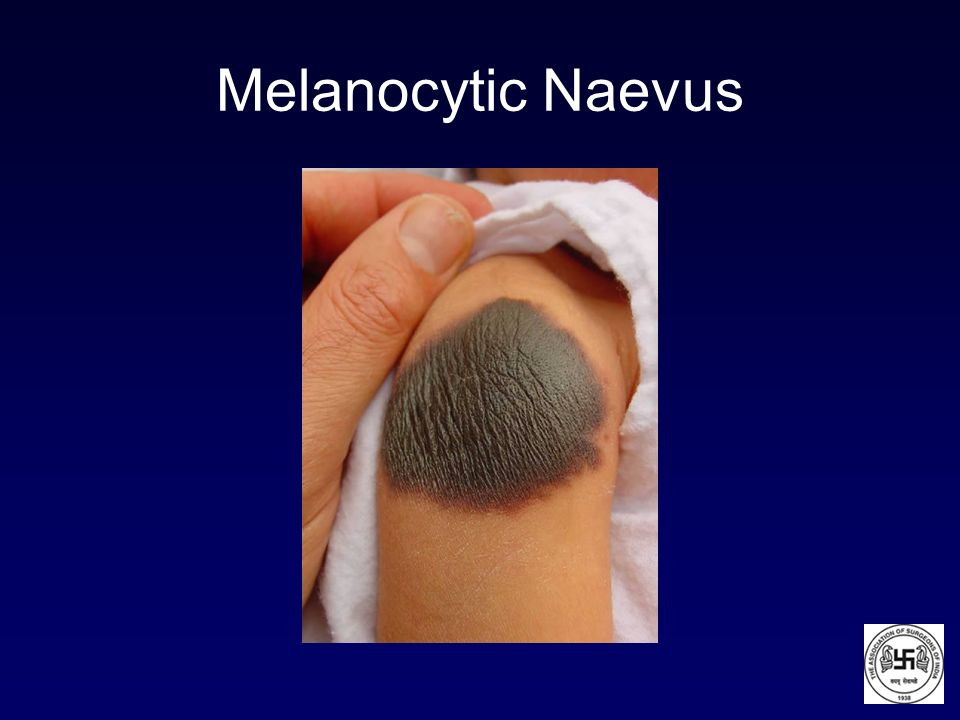 Melanocytic Naevus