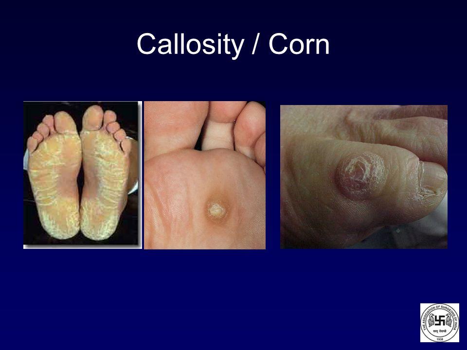 Callosity / Corn