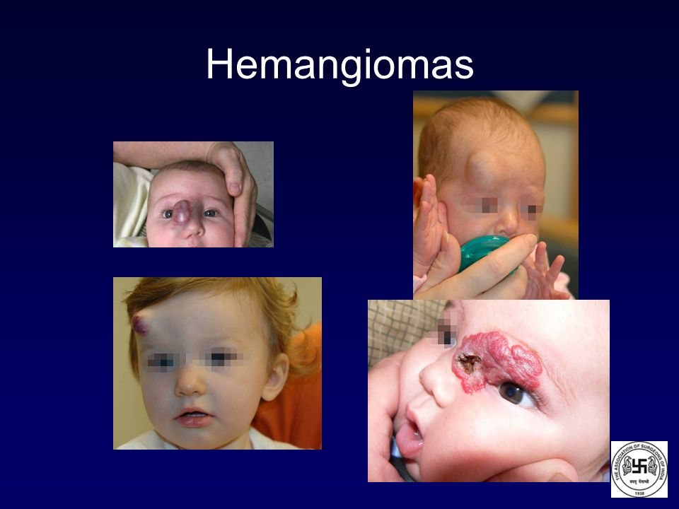 Hemangiomas