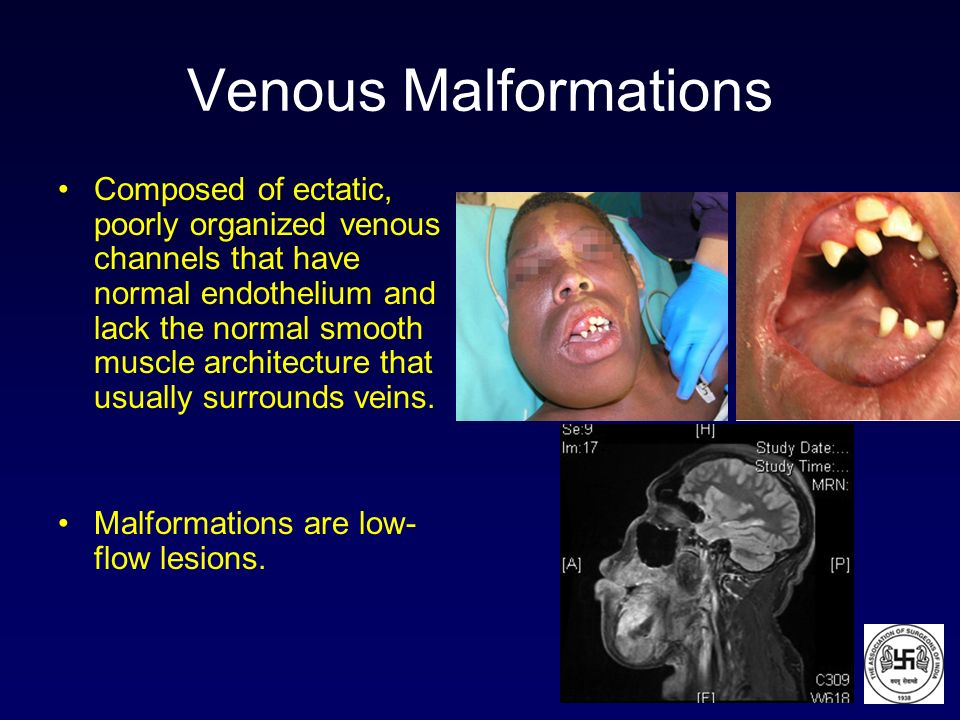 Venous Malformations