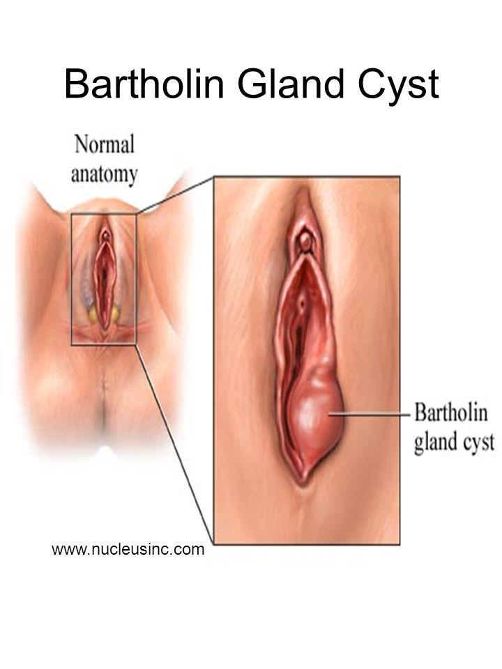 Bartholin Gland Cyst www.nucleusinc.com