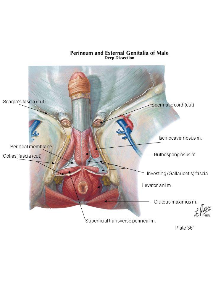 Scarpa's fascia (cut) Spermatic cord (cut)