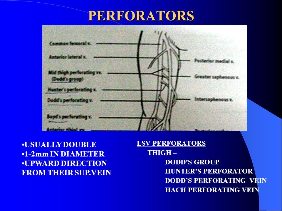 PERFORATORS USUALLY DOUBLE 1-2mm IN DIAMETER