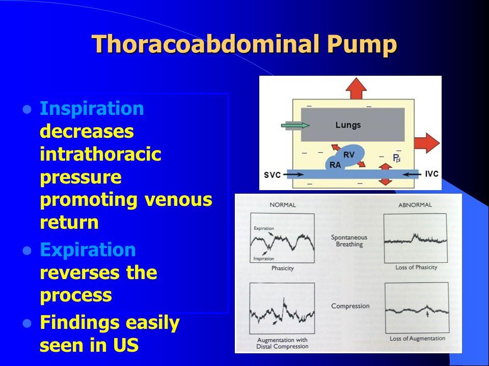 Thoracoabdominal Pump