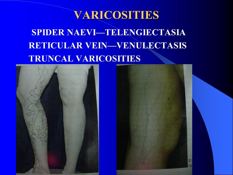 VARICOSITIES SPIDER NAEVI—TELENGIECTASIA RETICULAR VEIN—VENULECTASIS