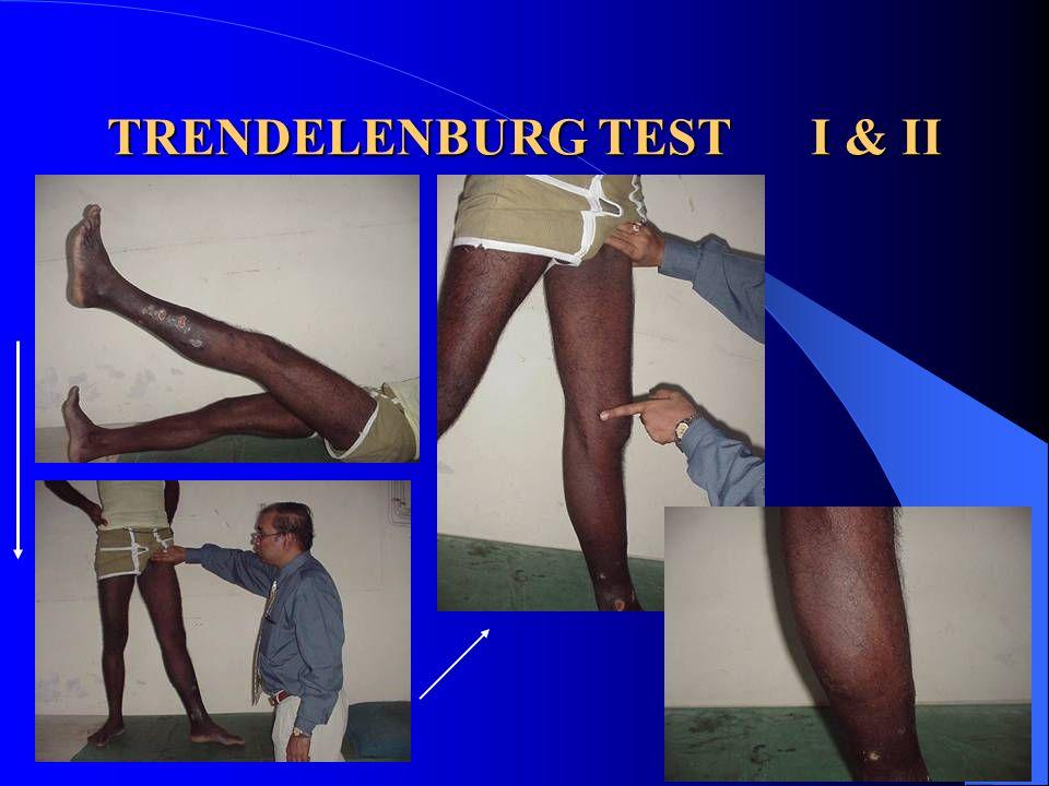 TRENDELENBURG TEST I & II