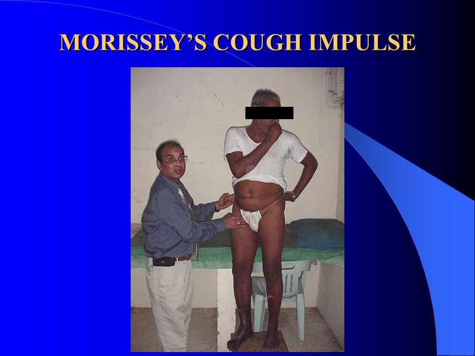MORISSEY'S COUGH IMPULSE