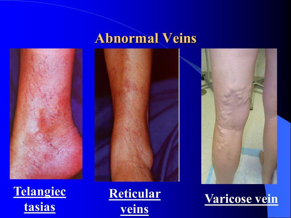 Abnormal Veins Telangiectasias Reticular veins Varicose vein