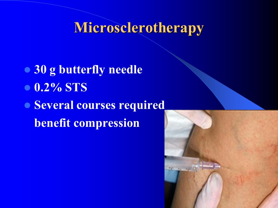 Microsclerotherapy 30 g butterfly needle 0.2% STS