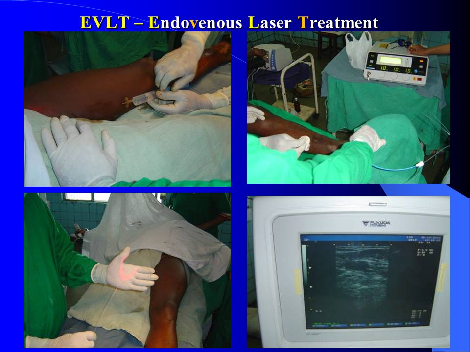 EVLT – Endovenous Laser Treatment