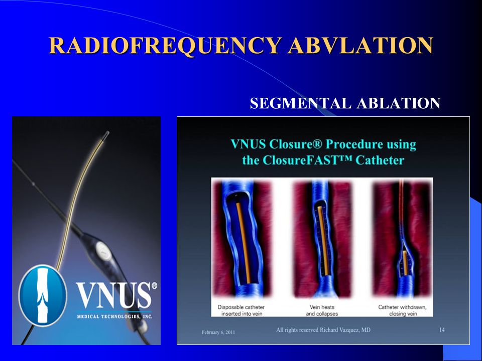 RADIOFREQUENCY ABVLATION
