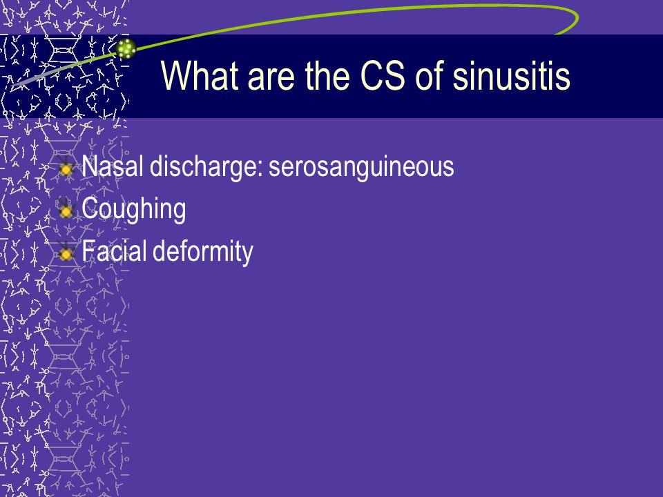 What are the CS of sinusitis