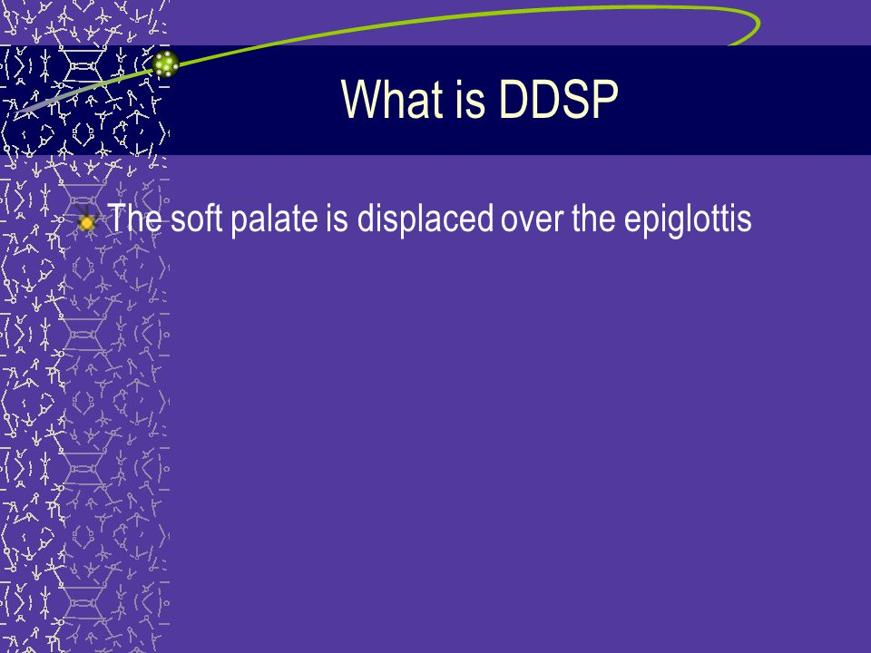 What is DDSP The soft palate is displaced over the epiglottis