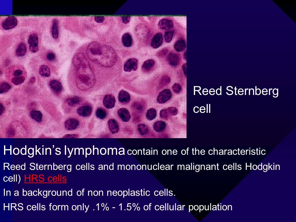 Hodgkin's lymphoma contain one of the characteristic