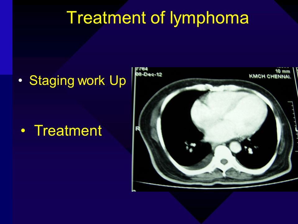 Treatment of lymphoma Treatment Staging work Up Treatment