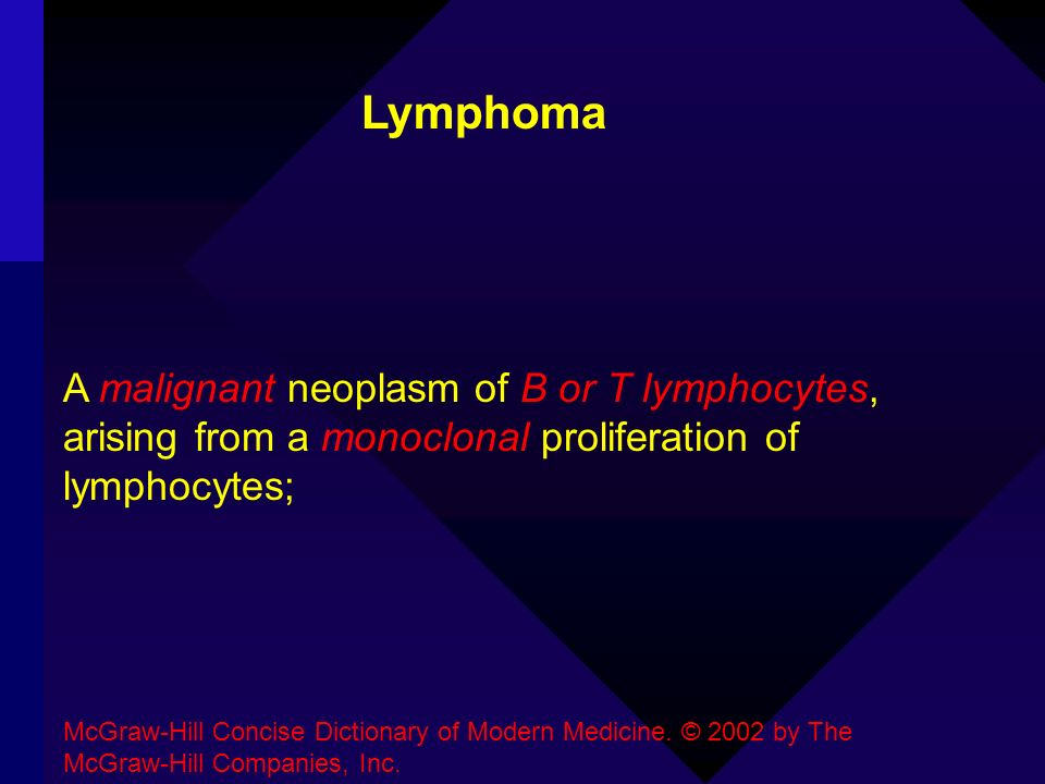 Lymphoma A malignant neoplasm of B or T lymphocytes, arising from a monoclonal proliferation of lymphocytes;