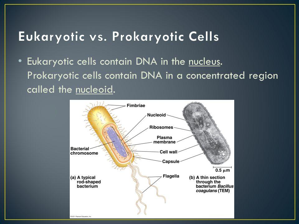 Eukaryotic vs. Prokaryotic Cells