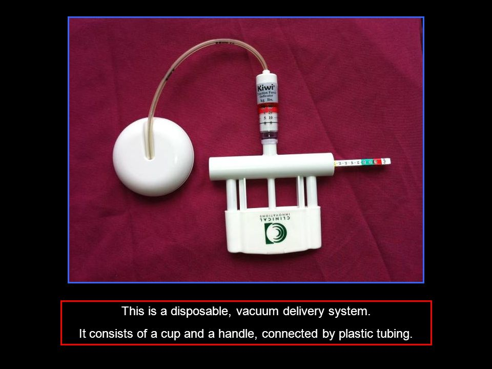 This is a disposable, vacuum delivery system.