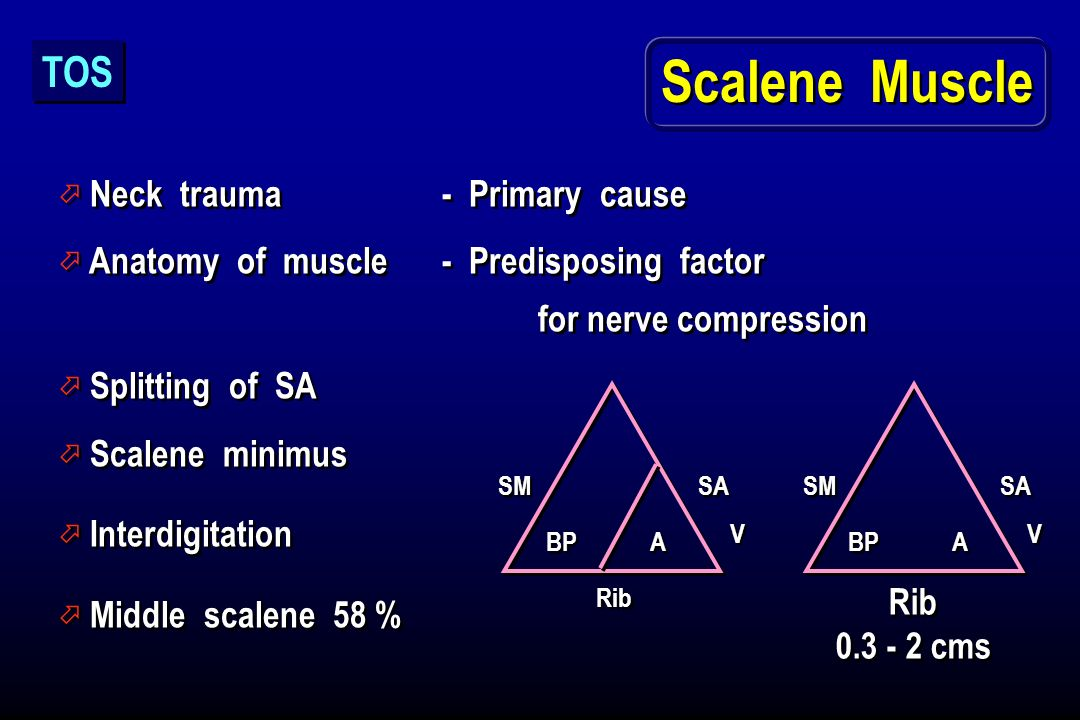 Scalene Muscle TOS Neck trauma - Primary cause
