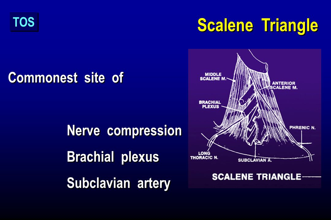 Scalene Triangle Commonest site of Nerve compression Brachial plexus