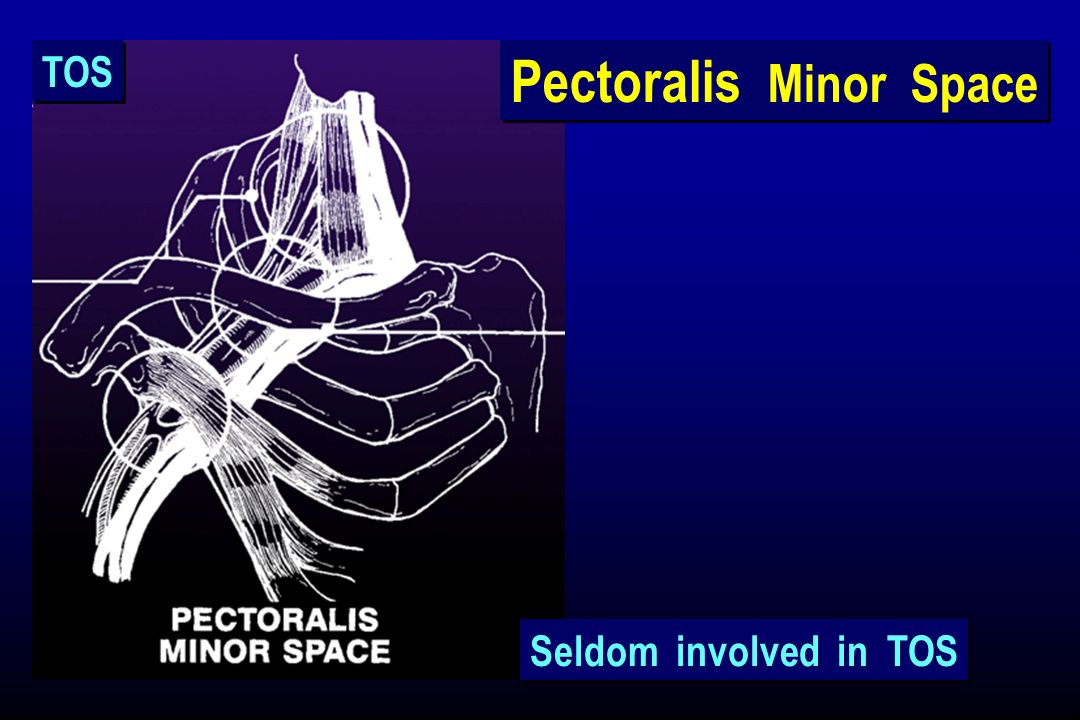 Pectoralis Minor Space