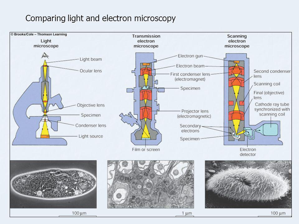 Comparing light and electron microscopy