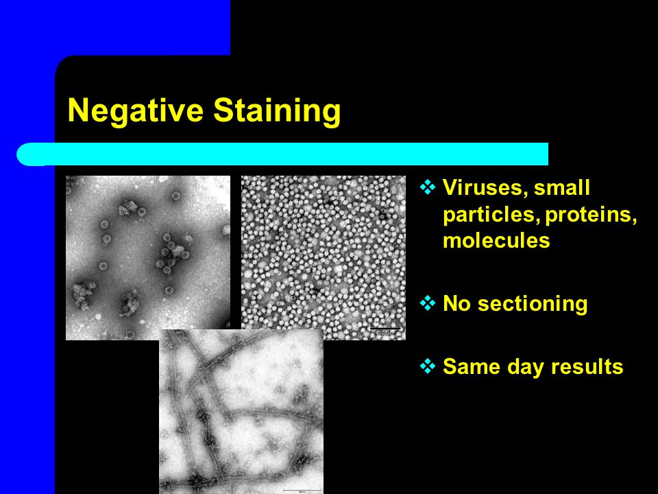Negative Staining Viruses, small particles, proteins, molecules