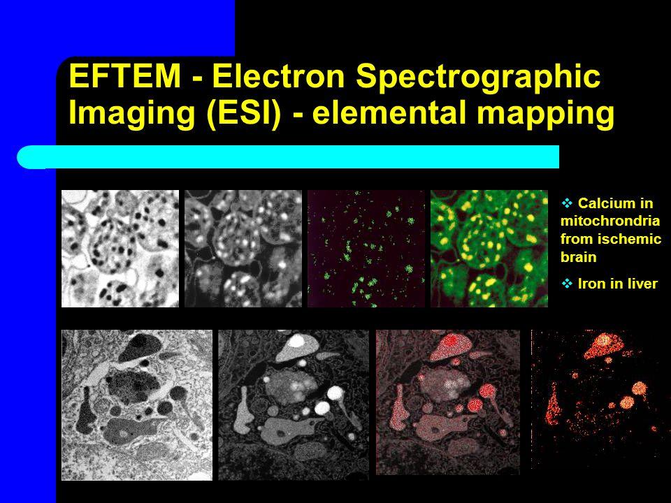 EFTEM - Electron Spectrographic Imaging (ESI) - elemental mapping