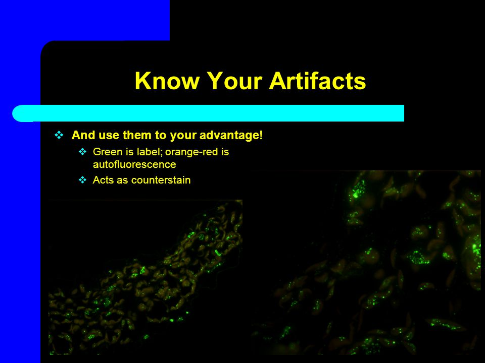 Know Your Artifacts And use them to your advantage!