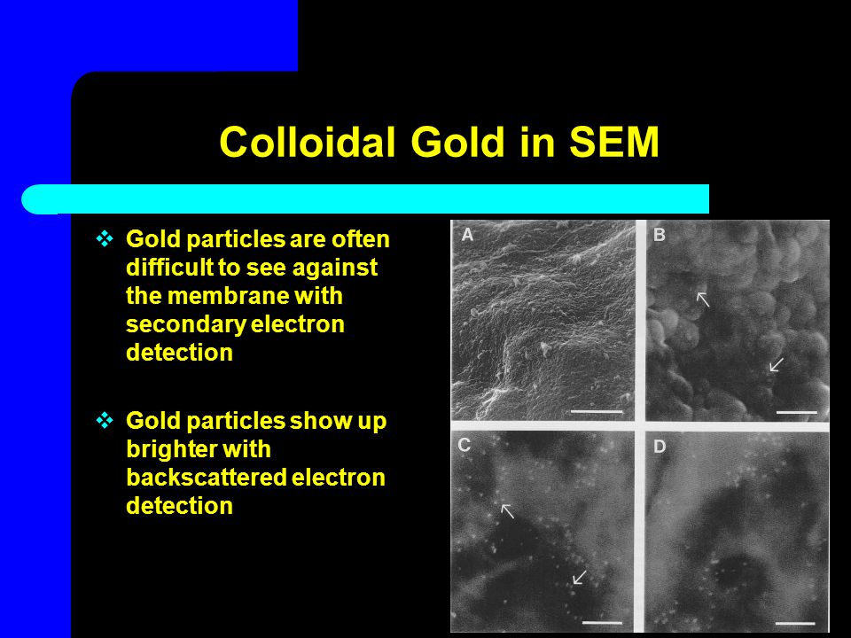 Colloidal Gold in SEM Gold particles are often difficult to see against the membrane with secondary electron detection.