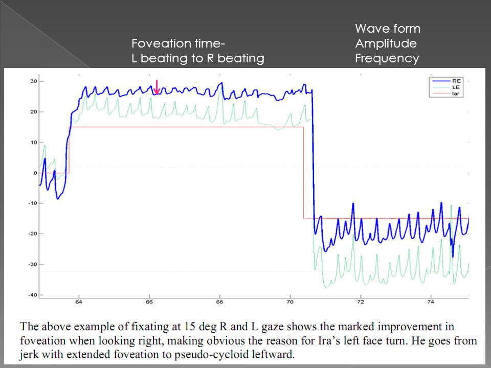 Wave form Amplitude Frequency Foveation time- L beating to R beating