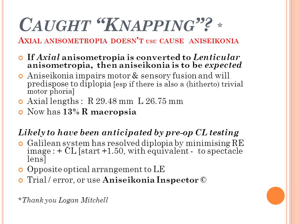 Caught Knapping * Axial anisometropia doesn't usu cause aniseikonia
