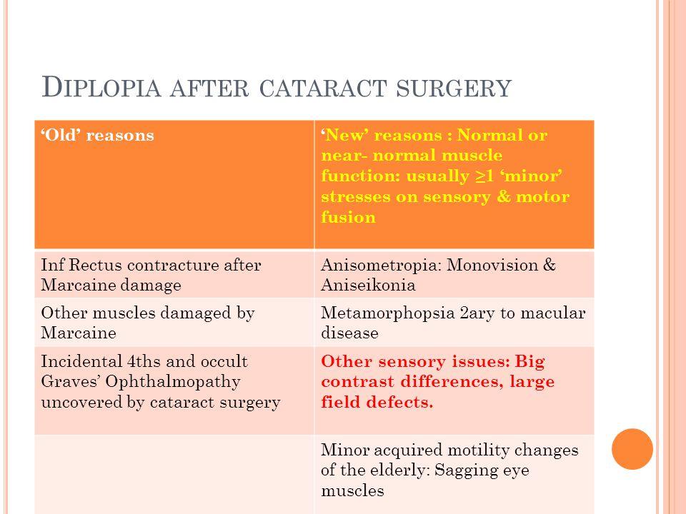 Diplopia after cataract surgery