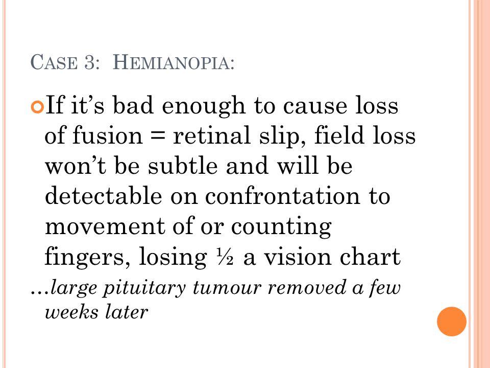 Case 3: Hemianopia:
