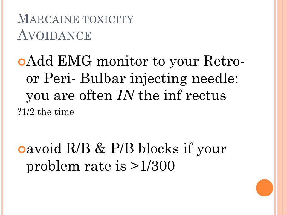 Marcaine toxicity Avoidance