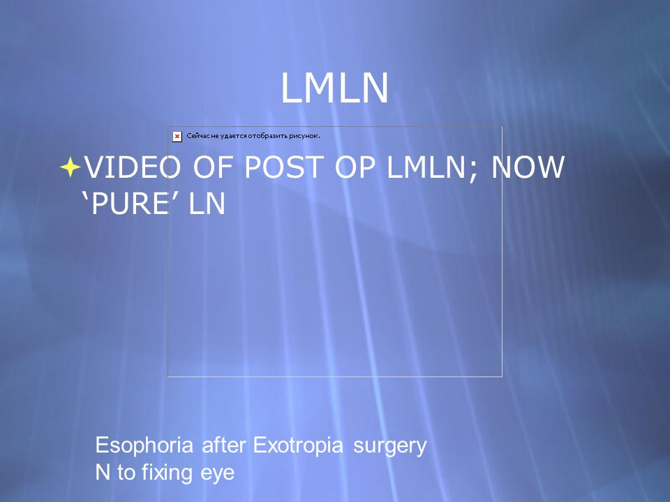 LMLN VIDEO OF POST OP LMLN; NOW 'PURE' LN