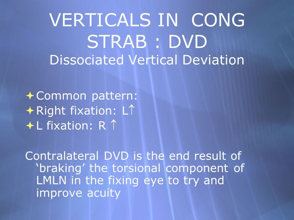 VERTICALS IN CONG STRAB : DVD Dissociated Vertical Deviation