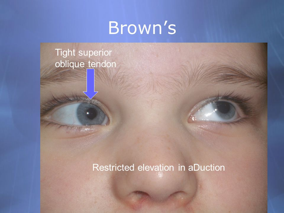 Brown's Tight superior oblique tendon Restricted elevation in aDuction
